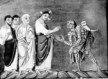 Leprosy In The High Middle Ages Part Iii Historical